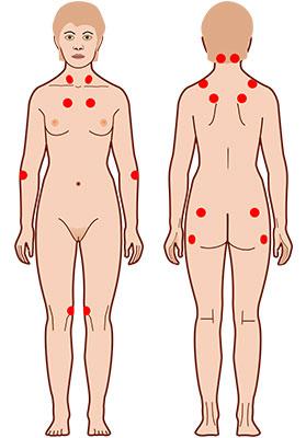 fibromialgija-4