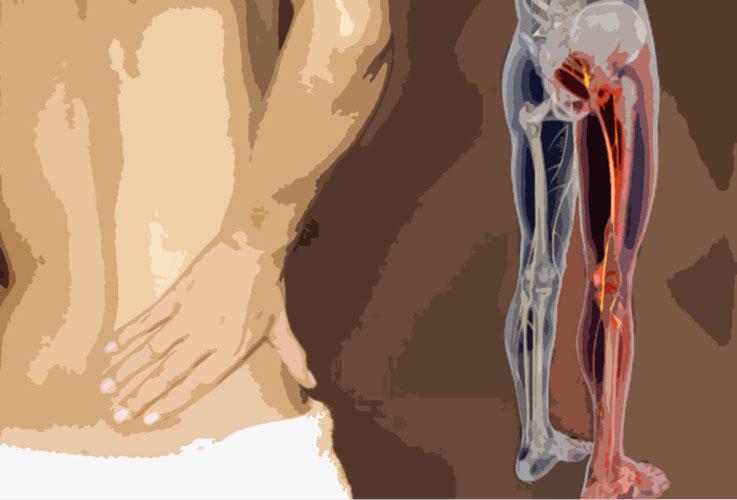 bolovi-u-donjem-delu-ledja-3