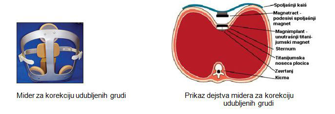 deformiteti-grudnog-kosa-mider