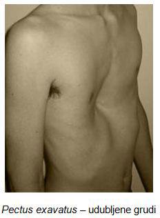 deformiteti-grudnog-kosa-udubljene-grudi-1