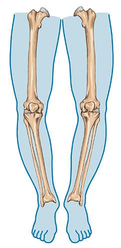 deformiteti-kolena-lecenje-2