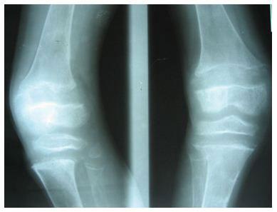 deformiteti-kolena-o-noge-3