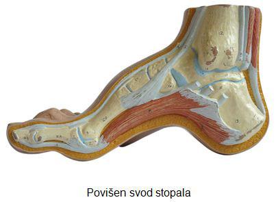 deformiteti-stopala-2