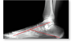deformiteti-stopala-4