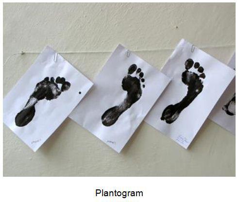deformiteti-stopala-plantogram