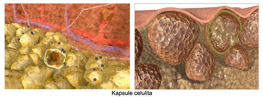 kapsule-celulita