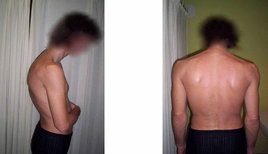posturalna-kifoza