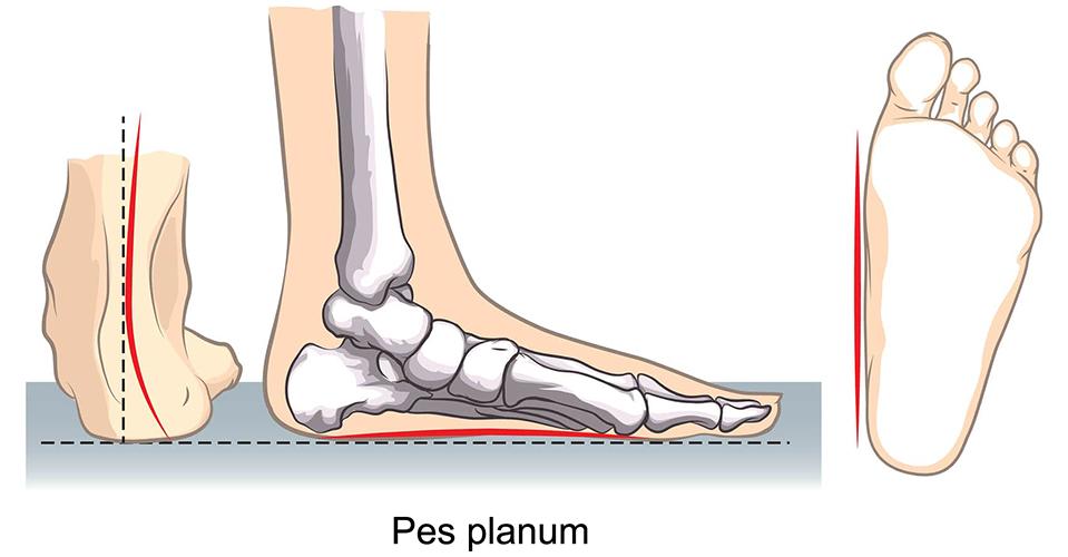 ravna-stopala-1