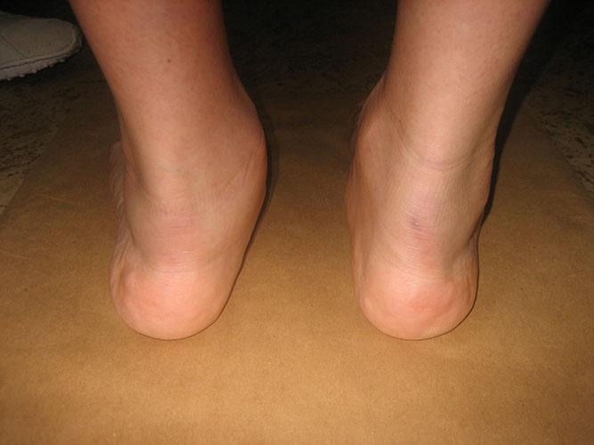 ravna-stopala-dijagnostika-1