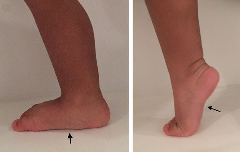 ravna-stopala-dijagnostika-2