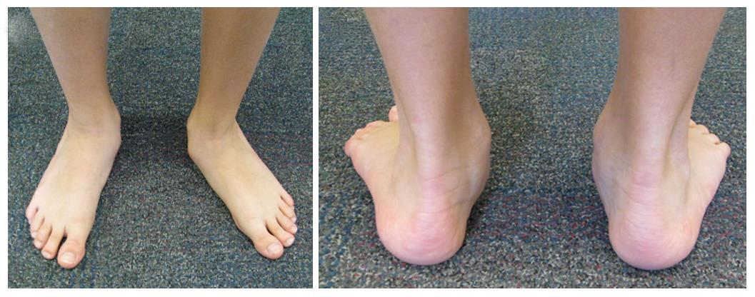 ravna-stopala-dijagnostika