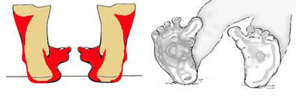 ravna-stopala-dijagnostikovanje-1