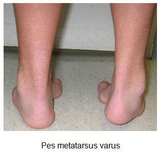 ravna-stopala-dijagnostikovanje