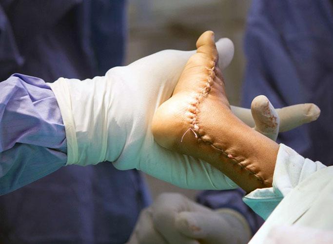ravna-stopala-lecenje-2