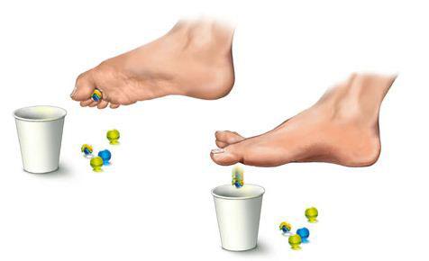 ravna-stopala-lecenje