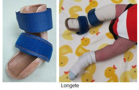 ravna-stopala-longete-1