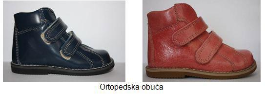 ravna-stopala-ortopedska-obuca