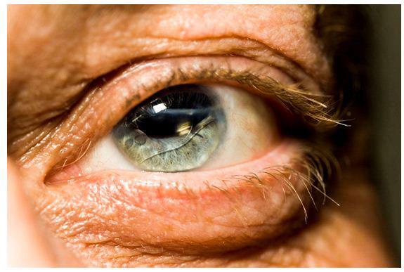 simptomi-starosti-2